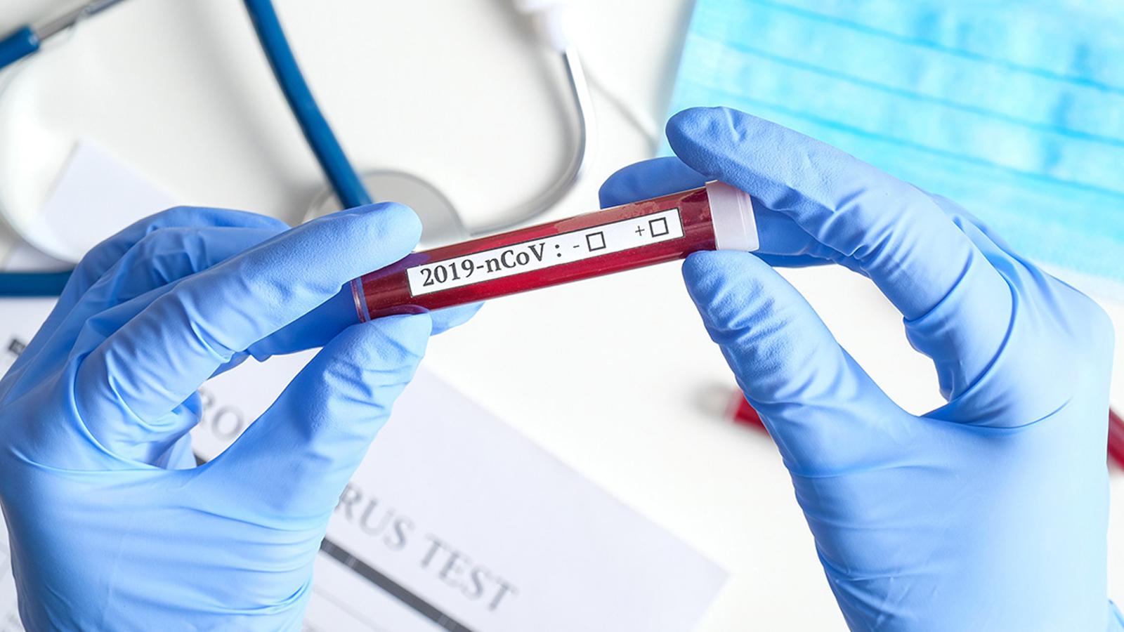 coronavirus-2020